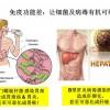 SNE Seabuckthorn Pylori – Hepatatis B Carrier – Ear Fluid Imbalance – Back Aching