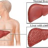 How is SNE Natural Essence Good for the Liver?