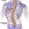 Scoliosis 脊柱侧弯