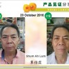 Nerve palsy or numbness resulting Face Distorted (面癱 Facial Paralysis)