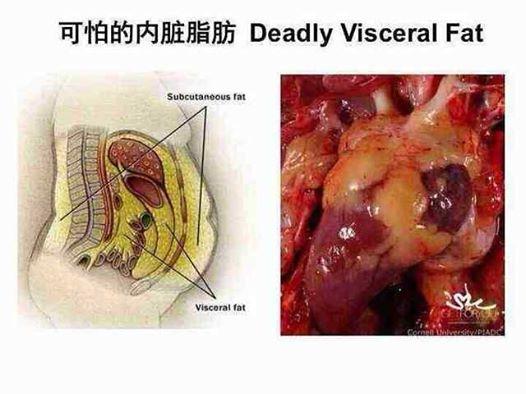 Viceral Fat 64